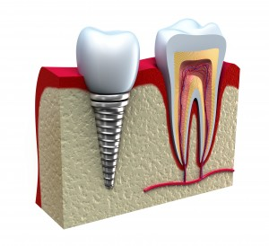 Dental implants, yo.