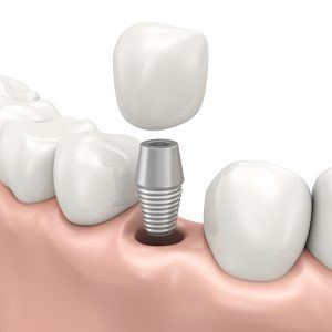 Your dentist for dental implants in Medford