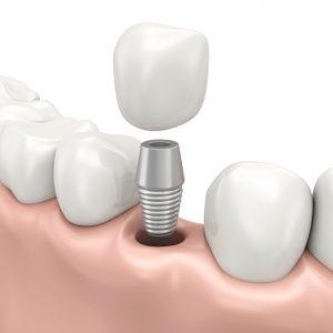 Your dentist for dental implants in Medford