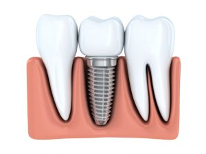 Learn more about your options for replacing missing teeth.