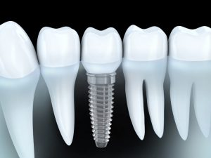 Your dentist in Medford for dental implants.