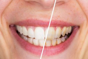 Discolored smile before and after visiting Medford dentist