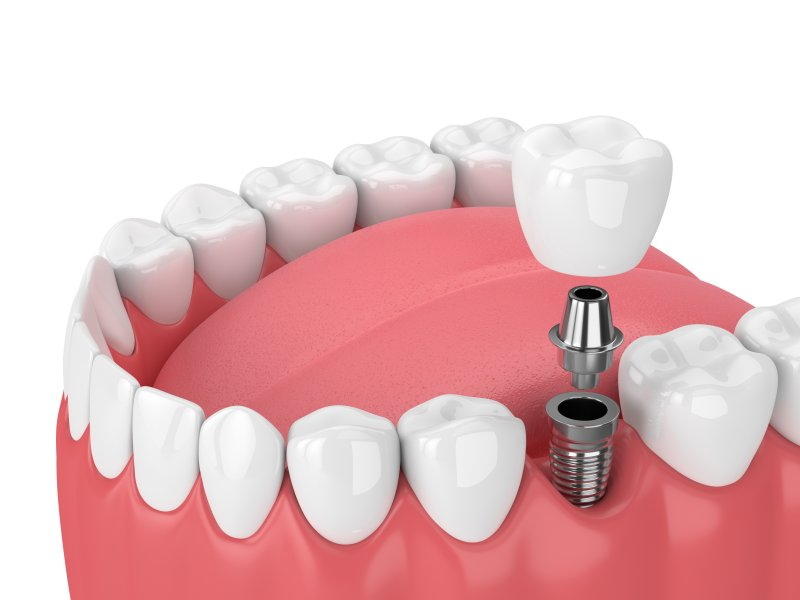 Illustration of dental implants in Medford