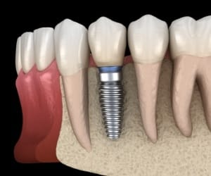 How to find the best implant dentist.