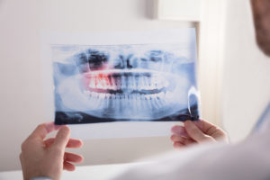 Dentist in Medford holding dental X-ray